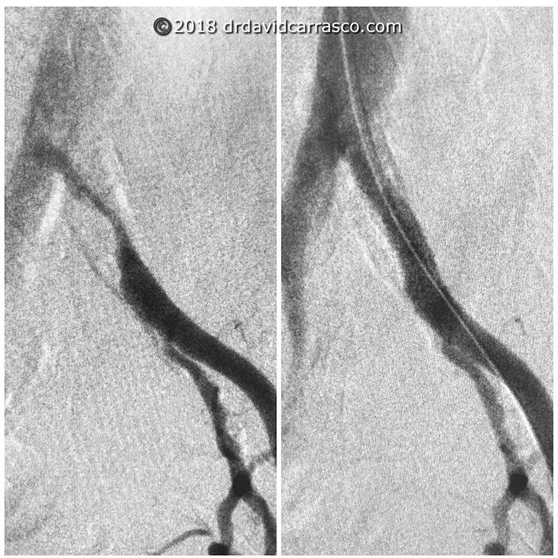 stenting-de-arteria-iliaca